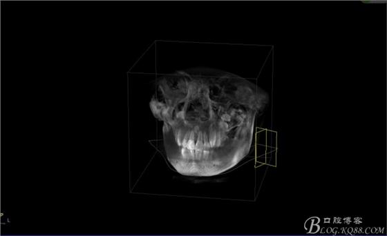 图5.唇侧未能扪及明显隆起,考虑手术的课操作性及 ...