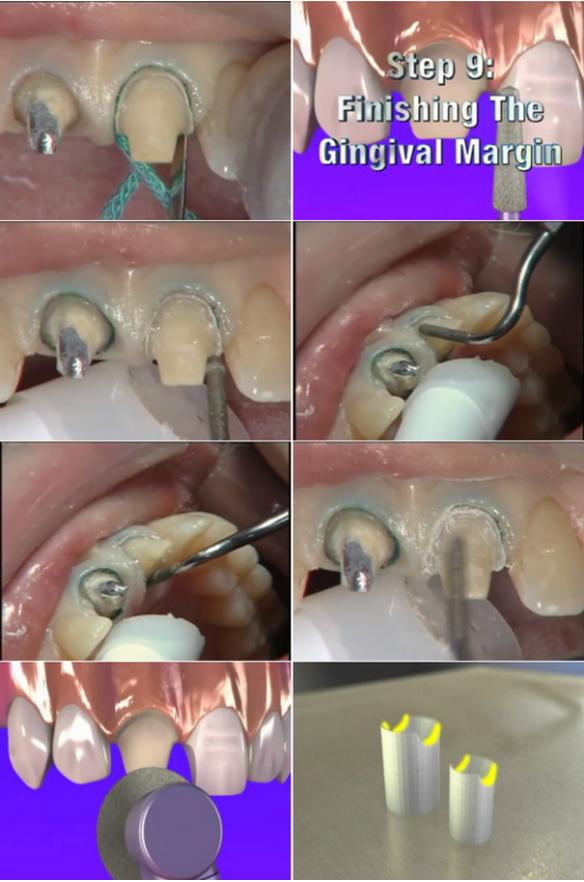 超实用-备牙标准,方法及图解