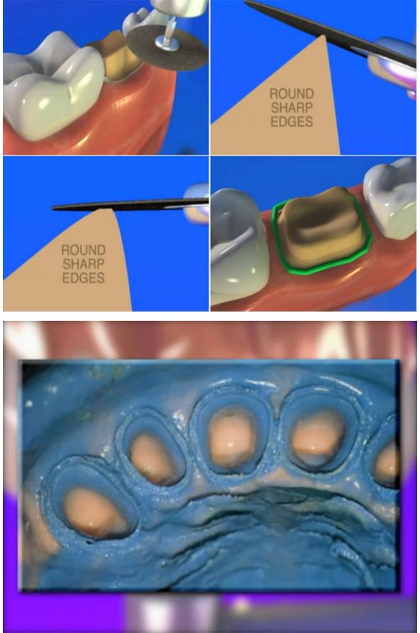 """转:口腔视界 在日常修复临床操作中,牙体制备是一项基本功,直接影响着义齿的就位、修复体的制作空间、牙髓活力和剩余牙体强度等,从而最终影响修复体的密合。但临床中,实际情况是大多数医生的牙体预备都没有严格的制备流程,最后的制备体也可以说是""""随心所欲、各显神通""""。我们都想不断提高自己的制备水平,但怎么做才能提高呢? 最近接到一位医生的电话,交流时他谈到非常希望提高自己的牙体制备水平。他自述曾经半年内在石膏模型上练习了近万颗牙齿的牙体制备,但让其困惑的是最终并没有感到有明显的提高。近万颗牙"""