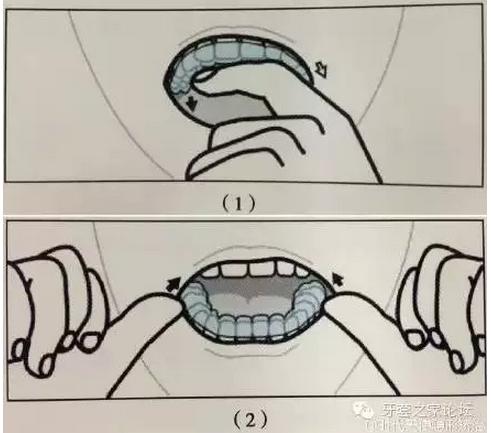 无托槽隐形矫治器的摘戴方法|流程步骤方法|陕西嘉友