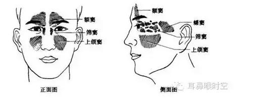 1.晕厥:多因患者紧张、疼痛或空腹所致,一般平卧片刻即可恢复,但要注意观察有无其他意外情况。 2.刺入鼻粘膜下造成粘膜下撕裂:因针刺方向与骨壁过于平行所致。故操作时针尖应对准同侧眼外眦,针柄尽量压向鼻小柱,穿刺针不可太钝。 3.刺入面部软组织:针未进入下鼻道即穿刺或上颌窦小而深所致。 4.