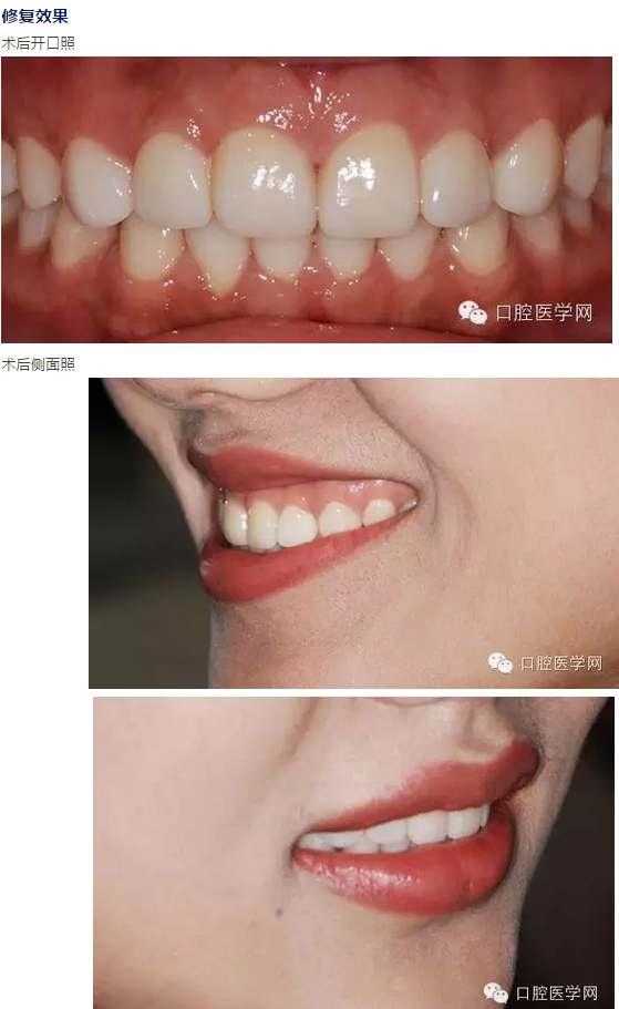 关闭牙齿缝隙 超薄瓷贴面修复案例赏析