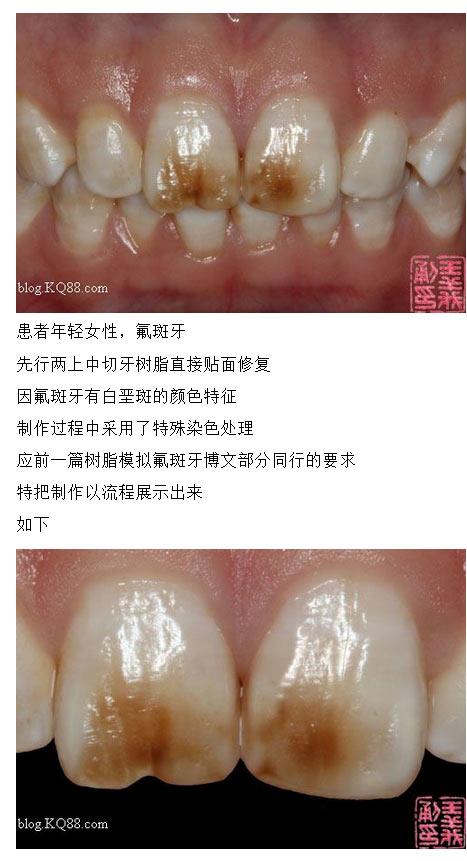 牙齿树脂贴面步骤图片