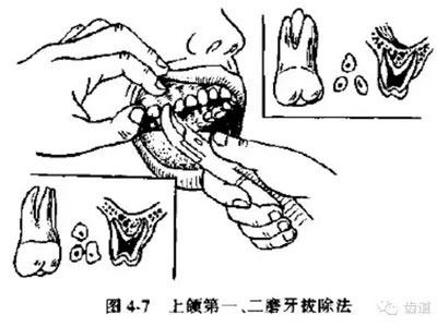 磨牙的结构图片大全