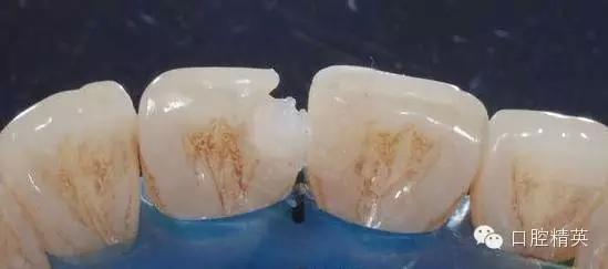 粘烤瓷牙_前牙树脂分层堆塑