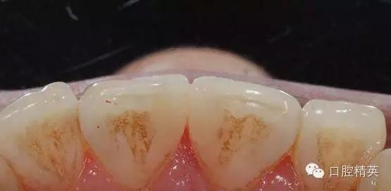 首页 嘉友资讯中心 修复类 前牙树脂分层堆塑  复合树脂的分层充填