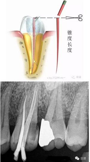crt热牙胶根管充填七步骤及护理配合