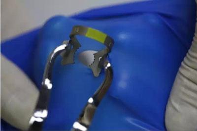专业| 橡皮障的安装方法-图解