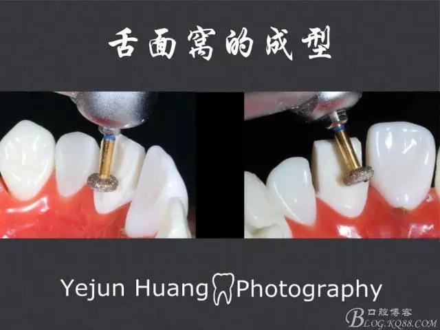 牙的预备|流程步骤方法