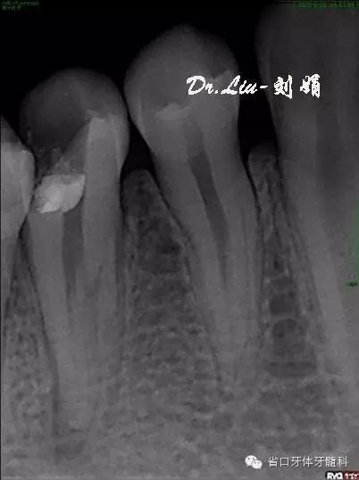 【病例分享】下颌第二前磨牙3根管病例1例