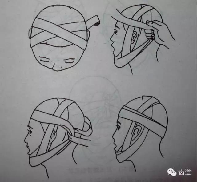 常用的包扎方法有头颌绷带十字形包扎法