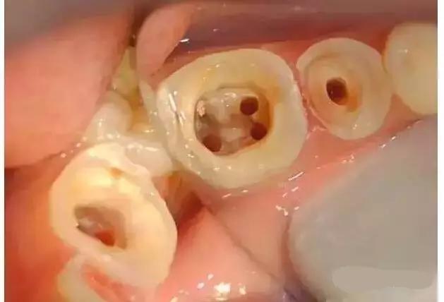 重点针对根管治疗后铸造桩核修复的牙体预备过程拿