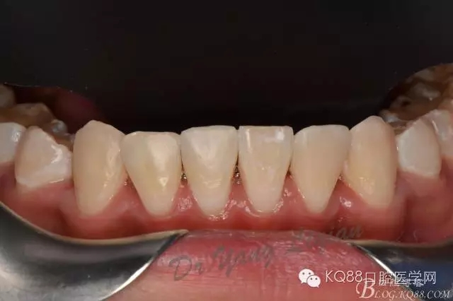 首页 嘉友资讯中心 修复类 下前牙树脂贴面--杨栎仟  来源于kq88口腔
