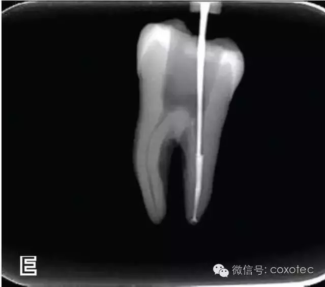连续波热牙胶充填技术的经典操作步骤