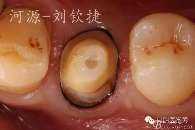 初诊时间:2016-4-22 患者:陈**,性别:男,年龄:47岁 主诉:右下后牙肿痛3天 现病史:3年前右下后牙因疼痛,在外治疗且行冠修复,患牙于3天前出现肿痛,牙龈肿胀,伴咬合痛,影响日常作息,前来我院就诊。 既往史:否认系统病史及药物过敏史。 口外检查:面部对称,右侧脸颊未见肿胀且未扪及疼痛。 口内检查:44全冠修复体,整体偏大与邻牙不协调,颊侧见瘘道口,牙龈红肿,前庭沟无明显变浅,叩痛明显,根尖区扪痛,不松动,舌侧牙结石I°;45颊侧颈1/3缺损达牙本质浅层,龈壁边缘位于龈下1mm。 辅助