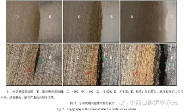 3d激光扫描显微镜下牙本质龋微结构的观察和分析
