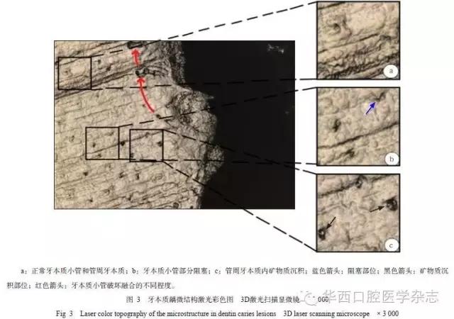作者:许立侠 徐红梅 朱晓英 孙丽梅 作者单位:武警总医院口腔科,北京 100039 [摘要] 目的 通过3D激光扫描显微镜观察牙本质龋的微结构,为临床上龋病的防治及相关研究提供形态学理论依据。方法 收集6颗新鲜拔除的有龋坏的第三磨牙,均制备成横剖面标本,在3D激光扫描显微镜下进行光学、激光彩色及3D形貌图的观察。结果 在样本整体结构中,光镜下可见病变组织的轮廓,激光彩色镜下较清晰分辨两层牙本质病变;在微结构中,激光彩色图下可以观察到透明层牙本质小管部分闭合,脱矿层管周和管间牙本质数目较少,细菌侵入层管周