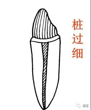 桩核冠修复(二)桩核冠的设计与牙体预备