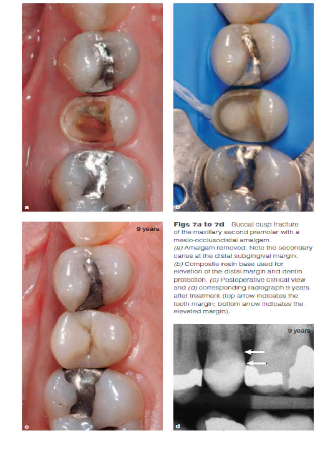 DME: 龈壁提升术 局部的龈下边缘会使间接粘接修复的应用更复杂(隔湿、取印、delivery传递?)并且会影响预后及与牙周组织的关系。这篇文章提出了一个技术即:通过采用即刻牙本质封闭(IDS)和采用一个直接粘接的复合树脂基底将龈下边缘提升到龈上。相比较外科冠延长术来说,龈壁提升术是一个有效且非创伤性的选择。这个技术也同样对大块的直接复合树脂修复有帮助。本文描述了龈壁提升术的基础原理。 在替换大块的二类洞修复体时可能会遇到龈下的邻面边缘。对于大面积缺损的牙齿来说,即便使用减小收缩应力的技术(如:slow-