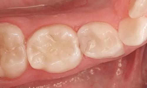 使用复合树脂结合透明冠修复破坏严重的前牙,同样也可以达到良好的