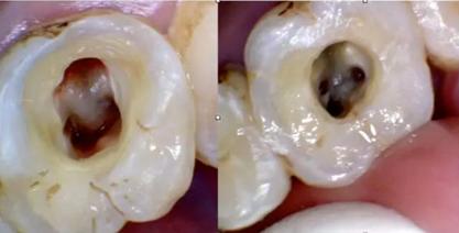 流程步骤方法 现代口腔标准根管治疗流程  》麻醉下去腐开髓,一定要