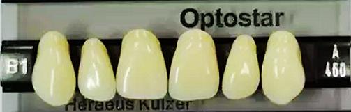 贺力氏 OptoStar欧星高端四层色牙